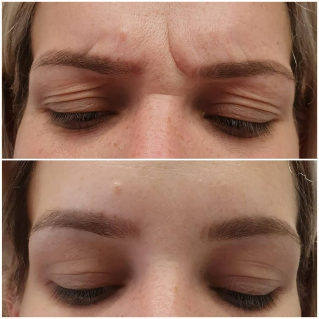 resultados de aplicación de botox