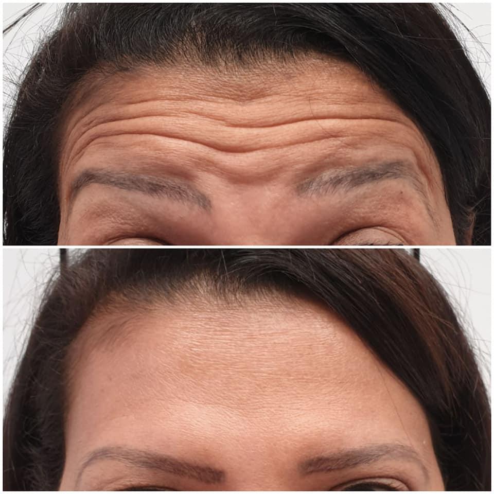 tratamiento de botox clinica vecindario