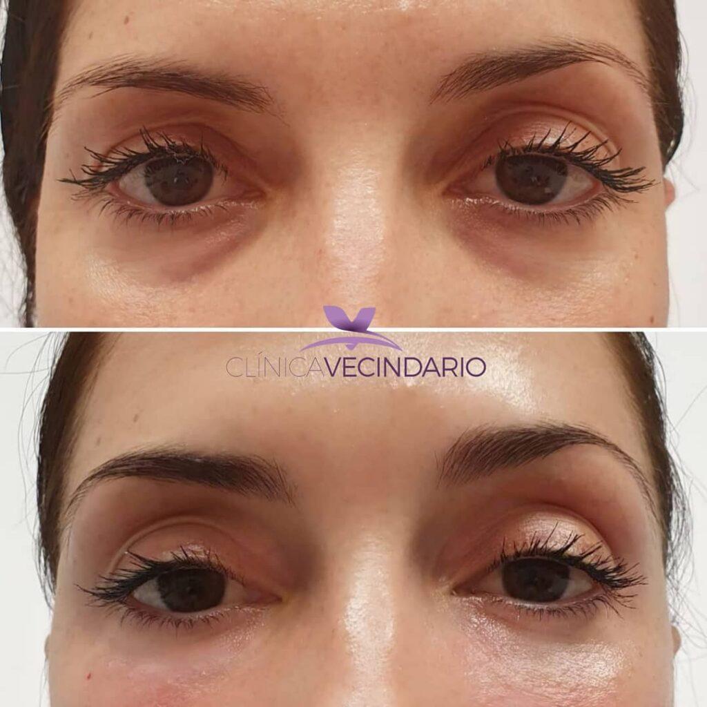 tratamiento de ojeras con ácido hialuronico