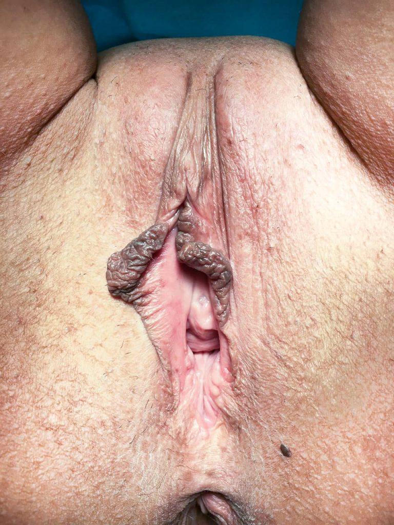 Fotografía de una vagina antes de una labioplastia